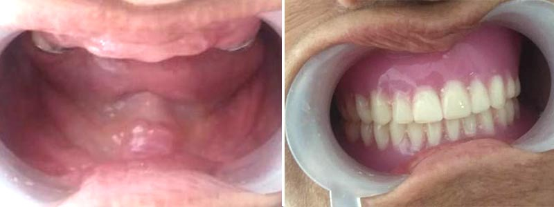 Kotilingams Dental Clinic   Different Types of Dentures